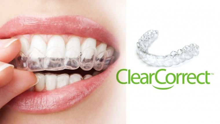 Ortodonzia invisibile: gli allineatori Clear Correct