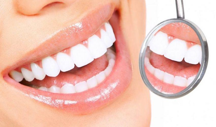 Odontoiatria estetica: tutto quello che c'è da sapere sullo sbiancamento dentale