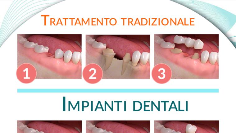 Impianti dentali e trattamento tradizionale